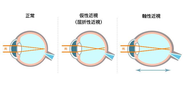 正常と仮性近視と軸性近視